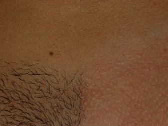 Лазерная эпиляция глубокого бикини (46 фото): экстра-удаление волос с интимной зоны, тотальная депиляция, отзывы