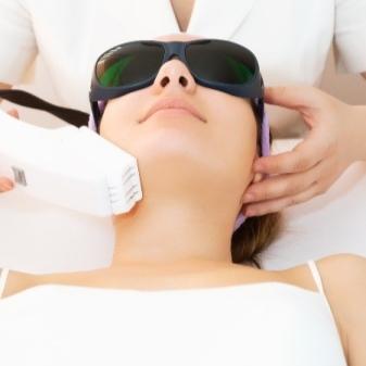 Лазерная эпиляция лица: результаты удаления волос лазером навсегда, отличия от депиляции, отзывы