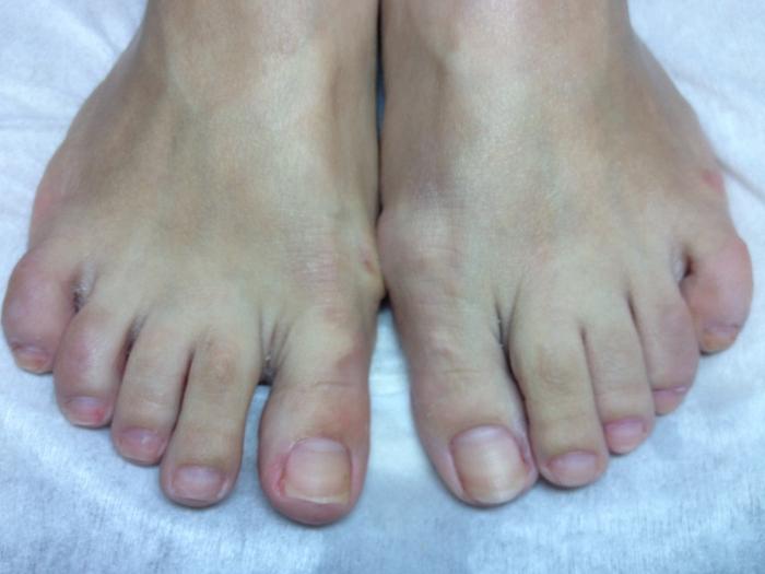 Фото ног без педикюра