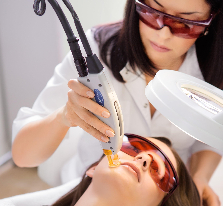 Фотоэпиляция над верхней губой: отзывы о преимуществах этой процедуры