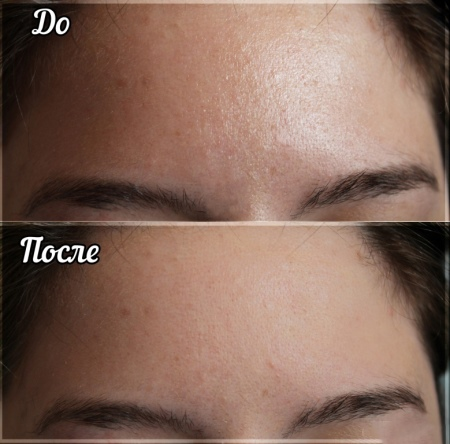 Аква-крем Чистая линия Мгновенная матовость: матирующее средство для лица Идеальная кожа, отзывы