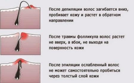 Раздражение после эпиляции: как убрать красные точки, снять покраснение, как избавиться от пигментации, средства для депиляции