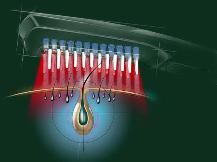 Лазерная расческа: лазерные расчески от Hairmax от выпадения и для роста волос, отзывы