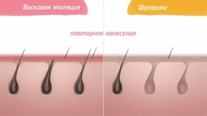 Крем чтобы не росли волосы