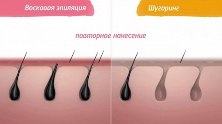 При депиляции воском обламываются волосы почему