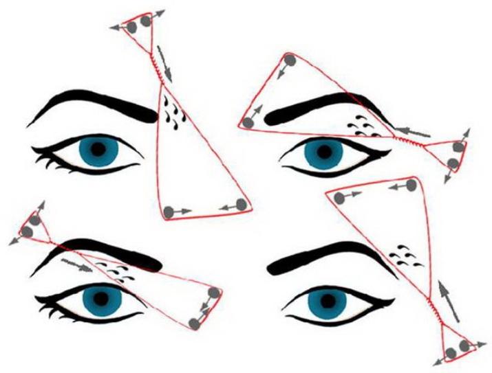 Удаление волос ниткой: как делать на лице эпиляцию и депиляцию с помощью шелковой нити, отзывы